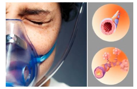 bronhial-naya-astma-u-rebenka-simptomy-i-lechenie