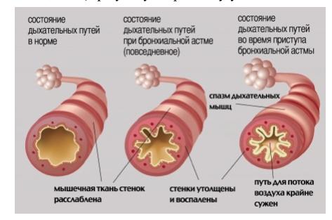 bronhial-naya-astma-u-rebenka-simptomy-i-lechenie2